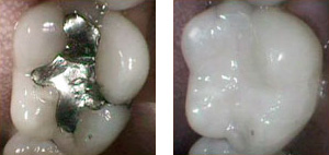 tooth_colored_fillings