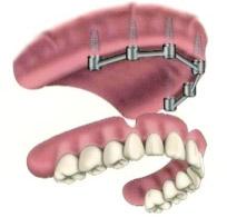 implant_01