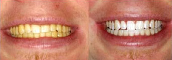 pro_teeth_whitening BEFORE AFTER