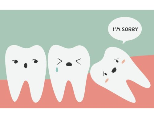 Extracting Impacted Wisdom Teeth