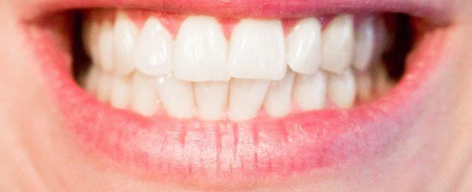 teeth-1652976_1280-1280x768